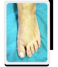 caso paziente 6 - alluce valgo post operatorio