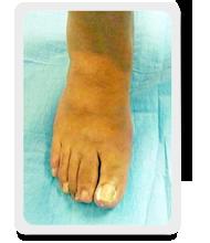 caso paziente 15 - alluce valgo post operatorio