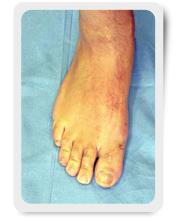 caso paziente 17 - alluce valgo post operatorio