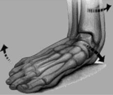 alluce valgo: conseguenze posturali