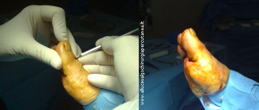 alluce esteso interfalangeo - intervento chirurgia percutanea