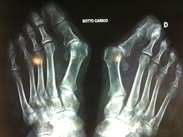 radiografia - alluce valgo pre