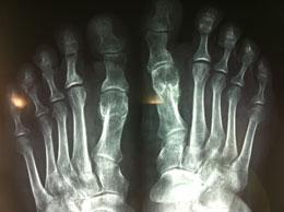 radiografia alluce valgo post
