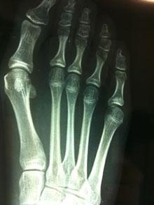 radiografia - alluce valgo - chirurgia percutanea