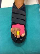 fasciatura K Dream con scarpa post operatorio