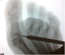 radiografia base della falange