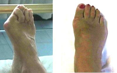 prima e dopo l'intervento