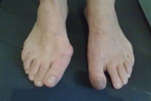 piede sinistro corretto